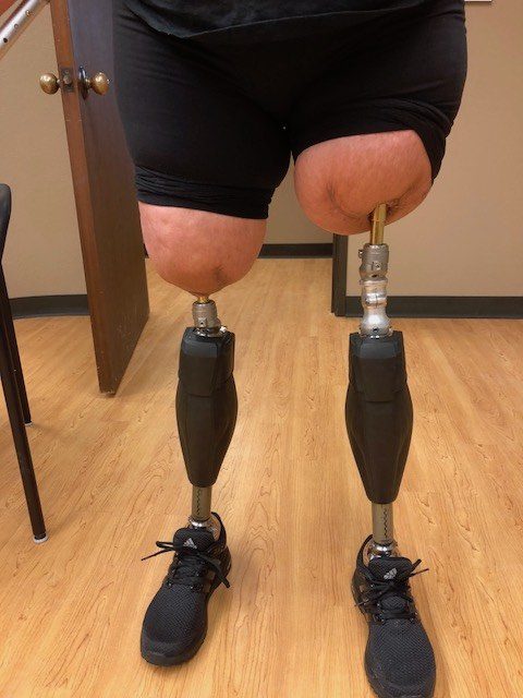 HPC has seen many Osseointegration patients.