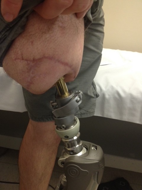HPC has seen many Osseointegration patients.  After Jon went to Australia to learn more about it.